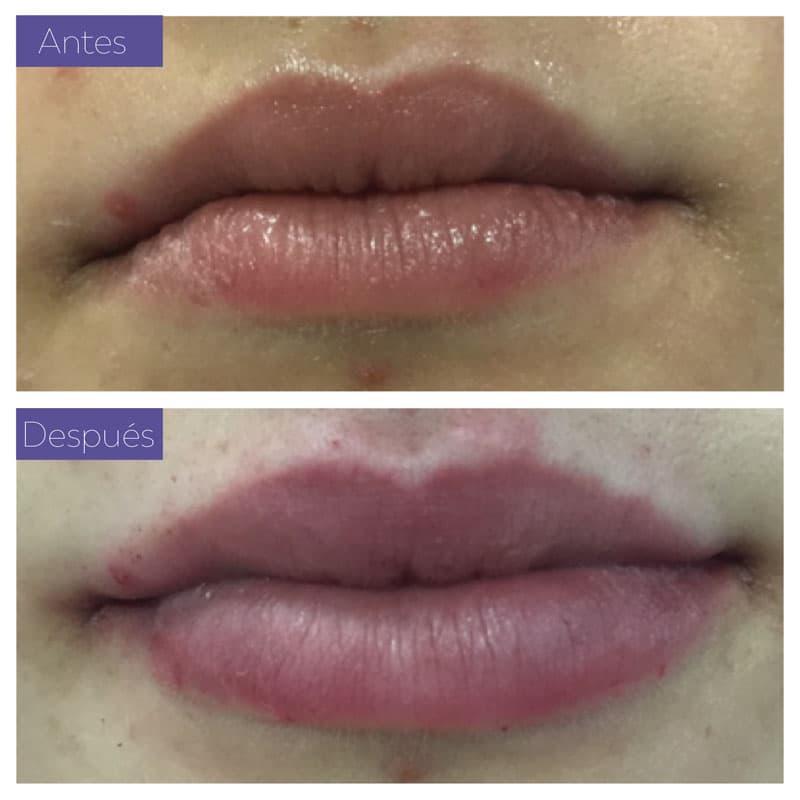 Tratamientos ácido labios
